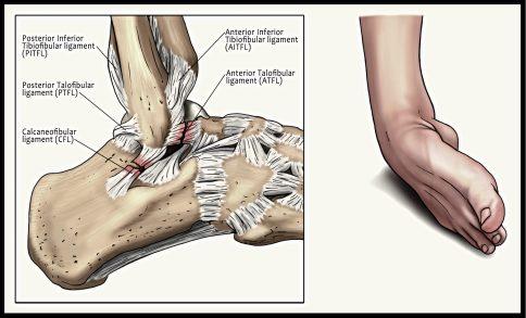 inversion ankle injury