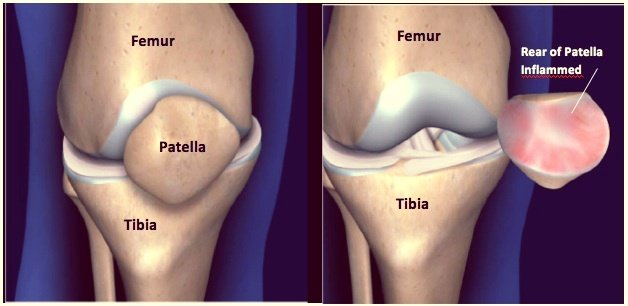 Patella dysfunction