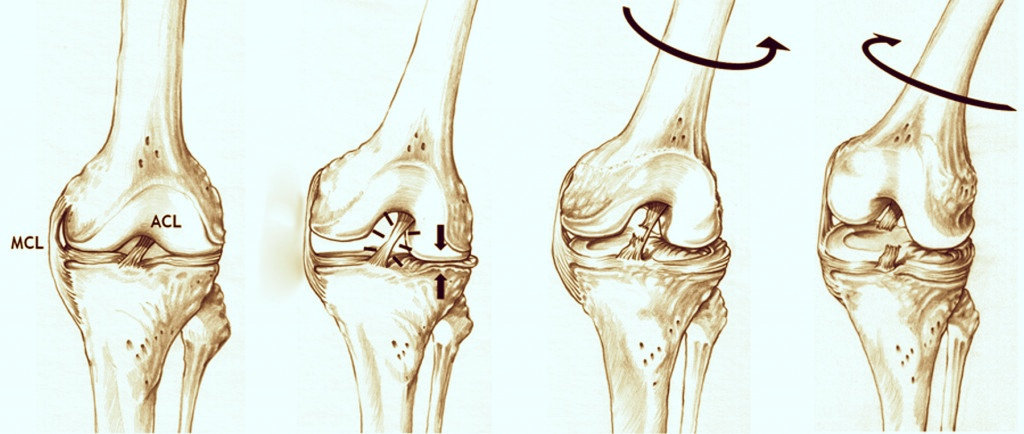 What's wrong with myknee?