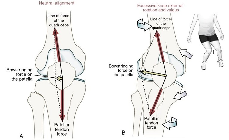 BOWSTRING+FORCE+ON+THE+PATELLA