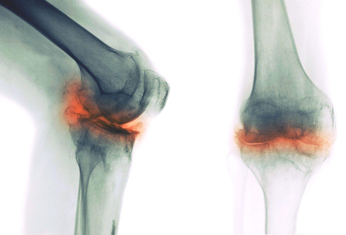 Knee OA – The importance on strengthtraining