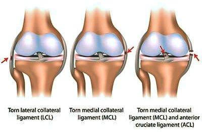 Ligament injury knee