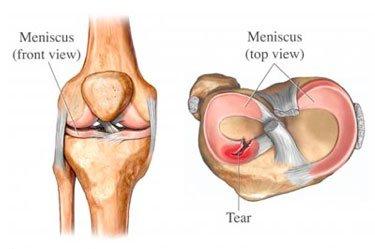 Knee injury meniscus
