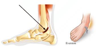 Shin splints tendinopathy